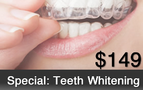 rockwall teeth whitening